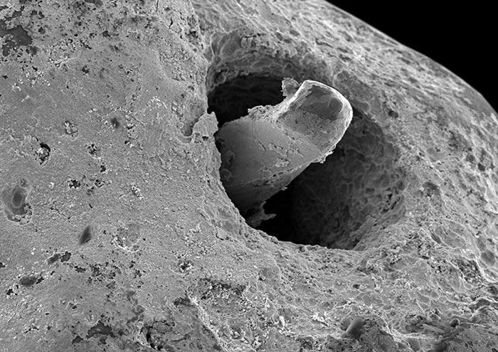 Patência e ampliação do forame apical