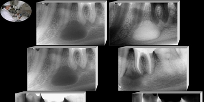 Curetagem Periapical