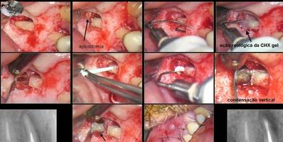 Endodontia - Retroinstrumentação