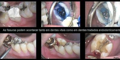 Fissura pré e pos endodontica