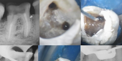 Mesial de molar inferior