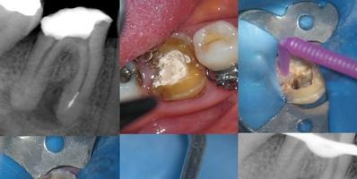 Mesial de molar inferior