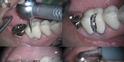 SISU molar