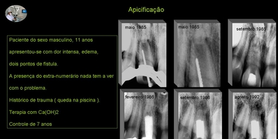 Apicificação dente 11