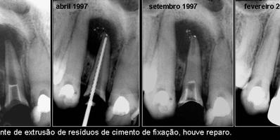 Extrusão dentária